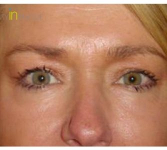 L. V. (Eye Lift Surgery Review)