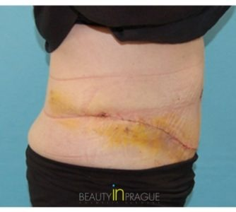 Pamela (Tummy Tuck + Liposuction) Before after photo