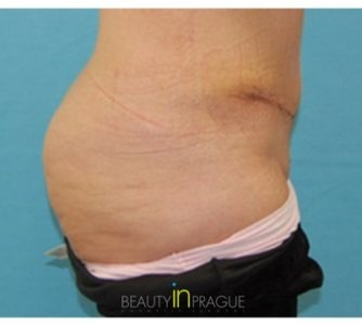 Shelley, UK (Tummy Tuck with Liposuction)