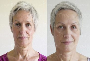 , My Facelift experience at Beauty in Prague