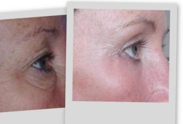 Upper and Lower Eyelids Surgery Before and After