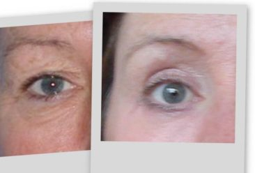 Upper Lower Eye Bag Removal Surgery Before After