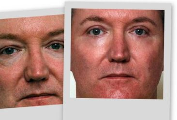 , Cosmetic Surgery a Growing Trend for Men