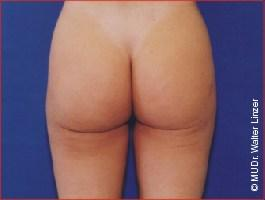 , New Specialist for Liposuction and Body Contouring