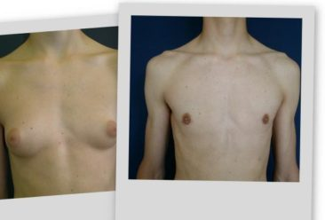 , Lower price for Medium Gynecomastia