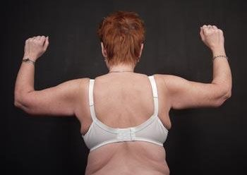 , Upper Arm Lift Before and After photos