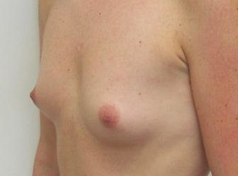 , Breast enlargement before and after photos
