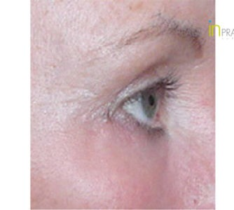 Carol, UK (Eyelid surgery Review)