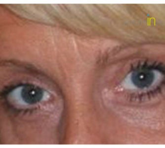 Sue, UK (Eyelid surgery Review)