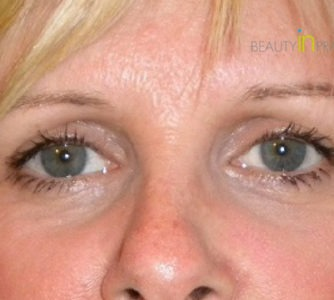 Kerry (Eyelid surgery Review)