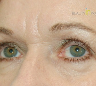 Mary, UK (Eyelid surgery)