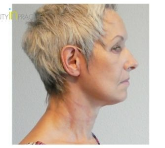 A. K. (Face Lift and Neck lift Review)