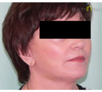 Dorothy, UK (Facelift, Arm Lift Review)