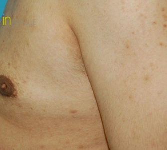 Richard, UK (Male Breast Reduction)
