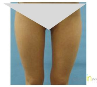 Michelle, UK (Liposuction Review)
