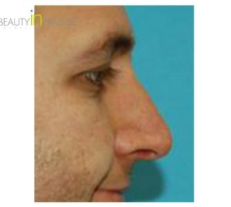M. R. (Rhinoplasty Review)