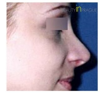 S. H. (Rhinoplasty Review)