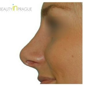 R. H. (Rhinoplasty Review)