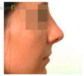 M. G. (Rhinoplasty Review)