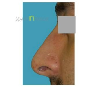 R. A. (Rhinoplasty Review)