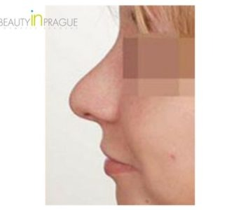 C. W. (Rhinoplasty Review)