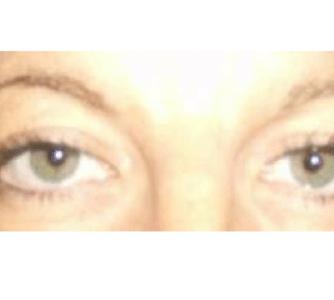 June, UK (Eyelid surgery)