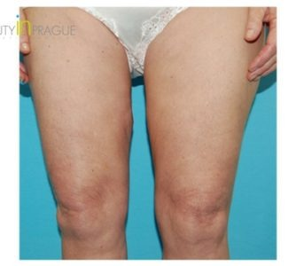 M. C. (Thigh Lift Review)