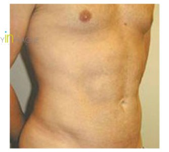 P. J. C. (Male Liposuction Review)