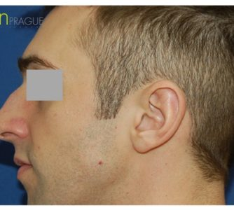 M. N. (Rhinoplasty Review)
