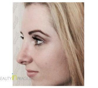Ashley (Rhinoplasty, Breast Augmentation Review)