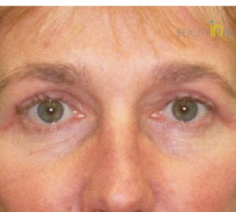 Anna (Eyelid surgery Review)
