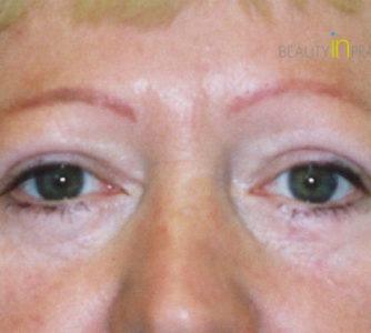 Eva (Eyelid surgery Review)