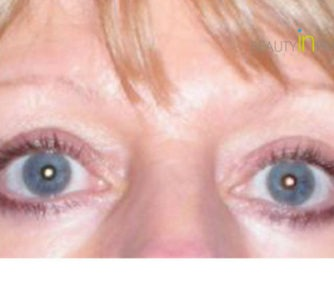 Ruth (Eyelid surgery Review)