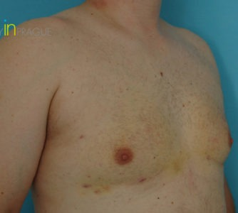 William, UK (Male Breast Reduction Review)